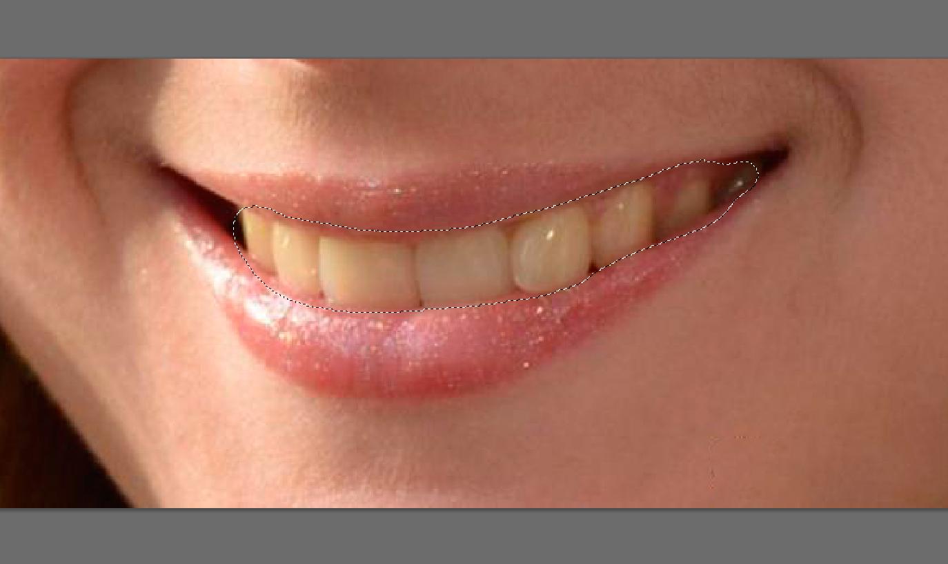 Как сделать зубы белыми в домашних условиях: пути достижения 85